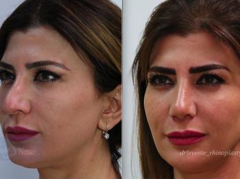 new beautiful nose surgery in Dubai