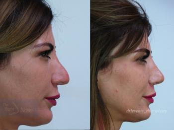 new beautiful nose Dubai
