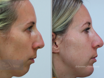 nose rhinoplassty