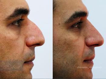 new rhinoplassty nose