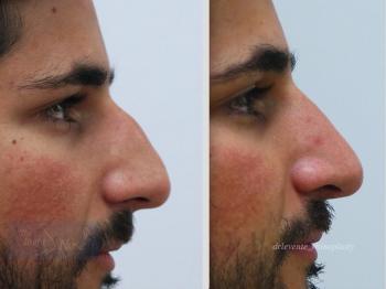 new nose in Dubai surgery