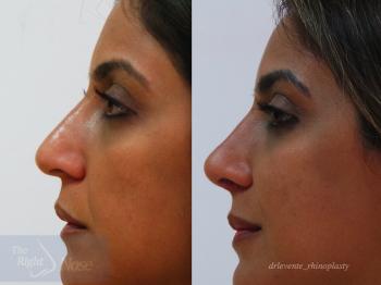 new beautiful nose surgery Rhinplassty