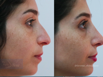 New Nose Rhinoplassty