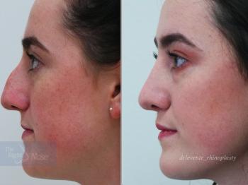 new beautiful nose surgery
