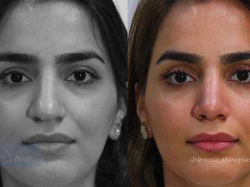 Rhinoplassty Surgery