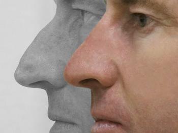 Surgery nose