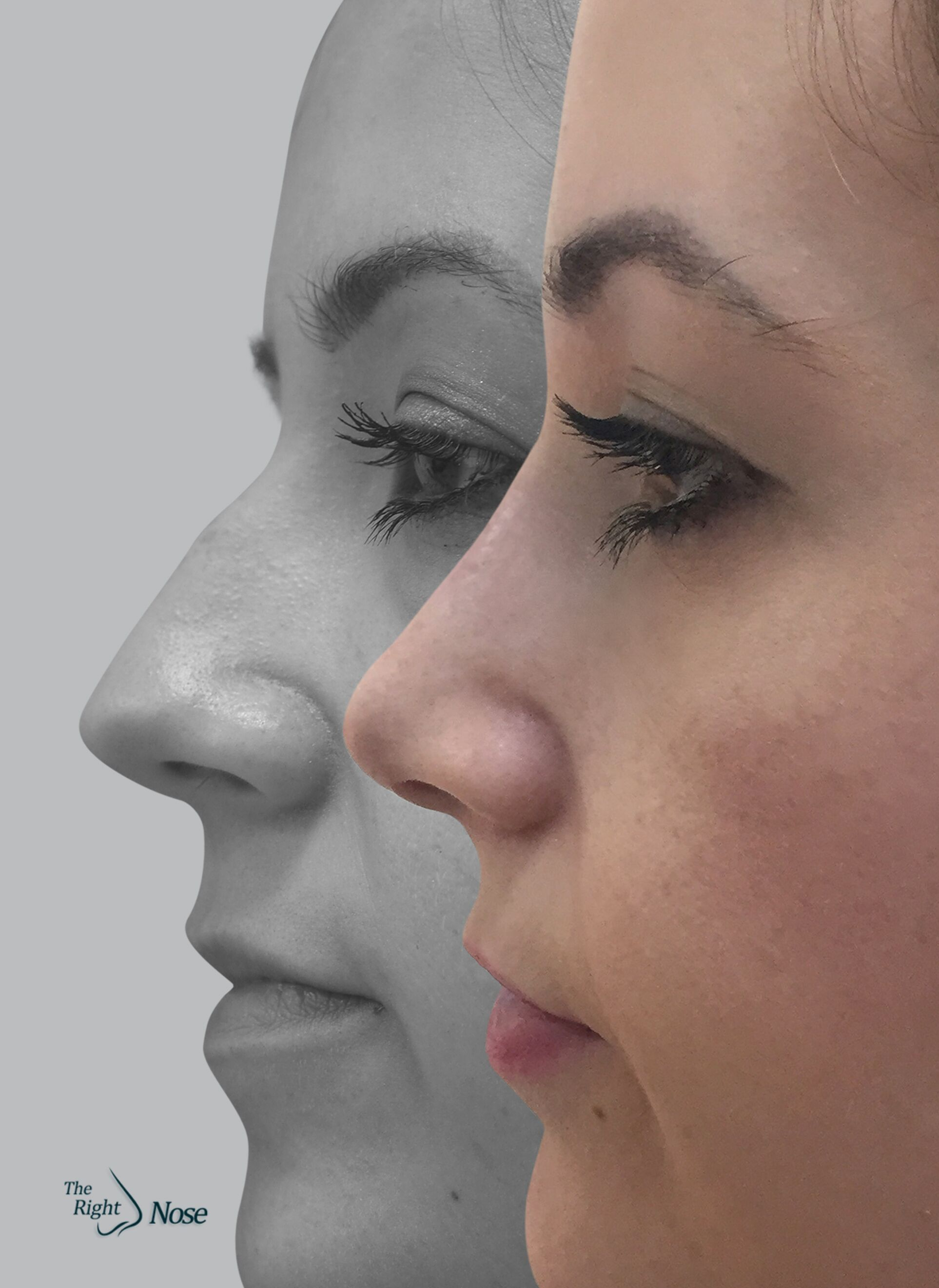 Nose surgery satisfied pacient
