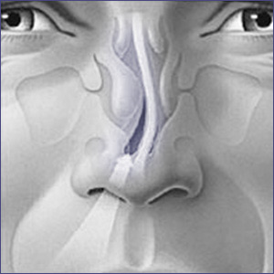 what-is-septoplasty