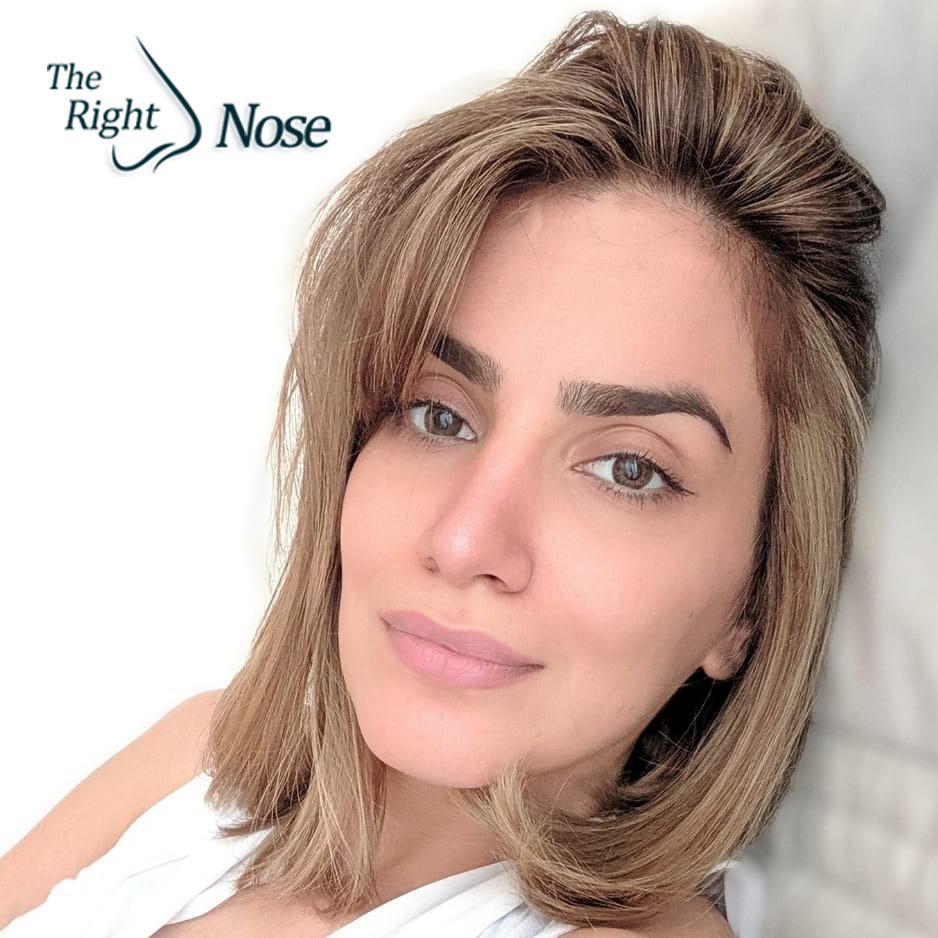 natural looking nose surgery